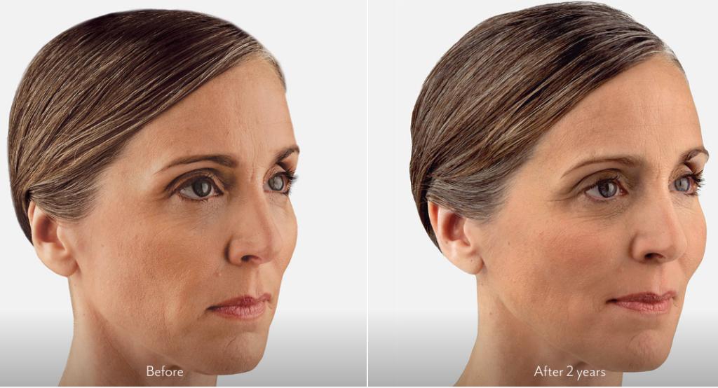 Juvederm - Redefine Beauty Aesthetics