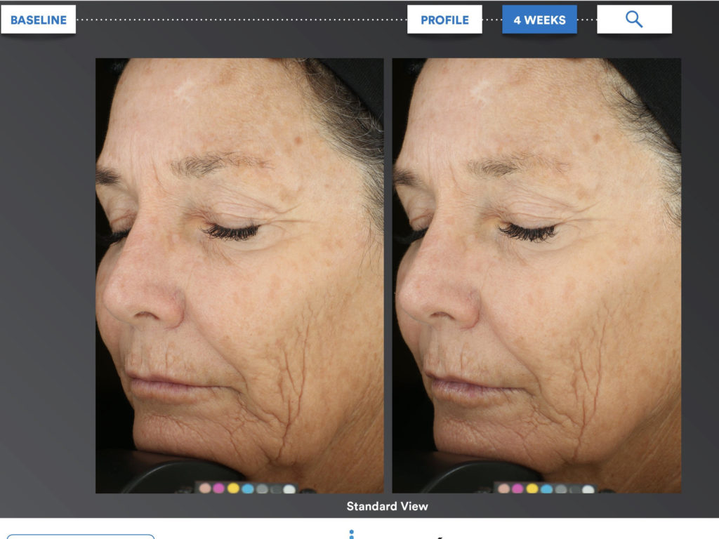 Patient after 4 weeks of Intensive Bio Complete Cream use
